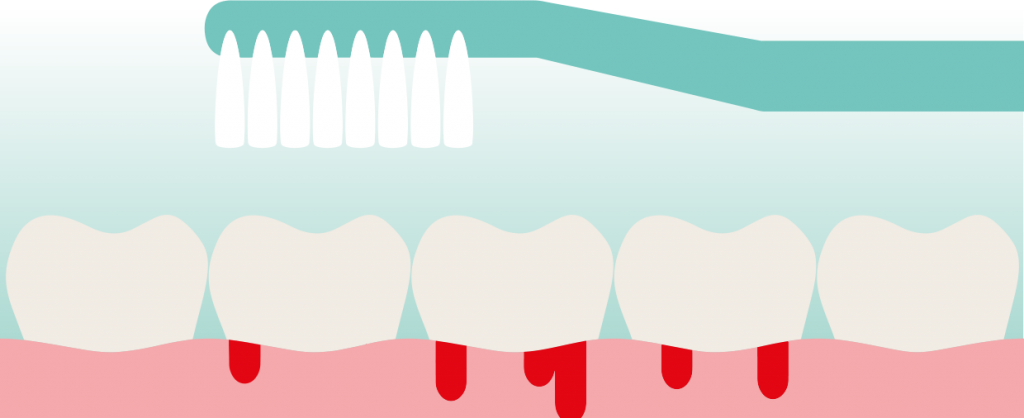 Hoe ziet gezond tandvlees eruit door Mondzorg Leusden