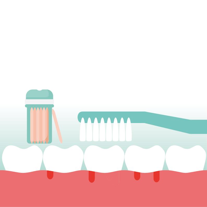 Belang van een gezond gebit door mondzorg Leusden website